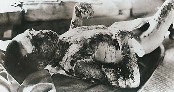 Victim of Hiroshima nuclear holocaust...