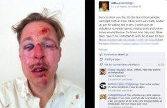 Wilfred .. photo publiée sur Facebook le lendemain de l'agression dont Wilfred aurait été victime avec son compagnon, dans la nuit du samedi 6 au dimanche 7 avril à Paris.